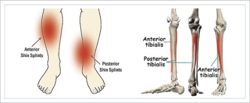 Shin splints can occur on the outside and inside of the lower leg