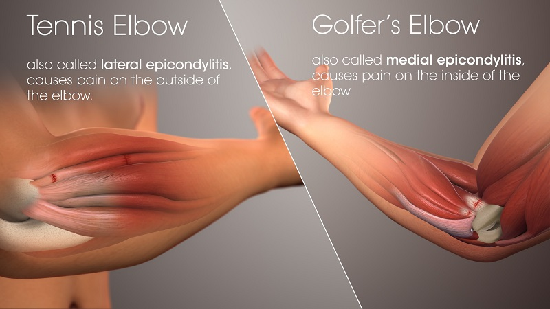 Golfer's Elbow and Tennis Elbow Location Differences